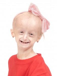 14_FOTO - Progeria Carly Cares